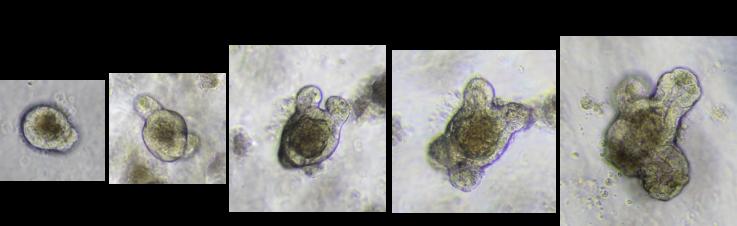 Intestinal organoids.png